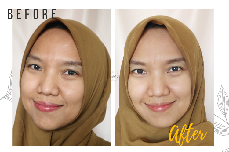 before after peeling