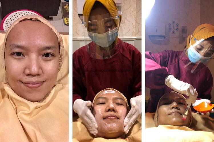 klinik kecantikan sidoarjo