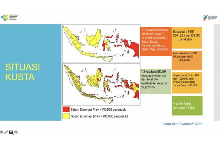 penyakit kusta di indonesia
