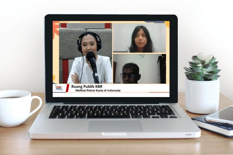 talkshow mengenal potret kusta di indonesia